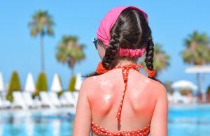 Quemaduras de sol en niños