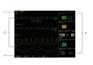 pantalla monitor signos vitales