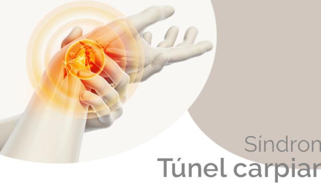 Síndrome del Túnel carpiano: síntomas y tratamiento